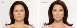 Alecia Before and After Botox®