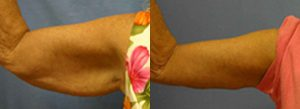 Patient A Arm Lift Before and After