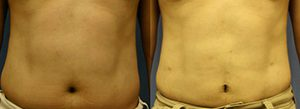 Patient A Liposuction Before and After