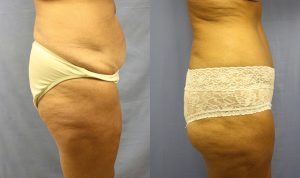 Patient 4b Tummy Tuck Before and After