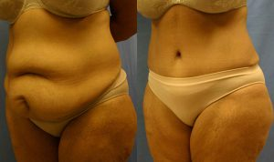 Patient 5b Tummy Tuck Before and After