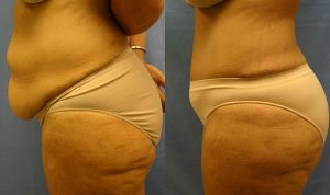 Patient 5c Tummy Tuck Before and After
