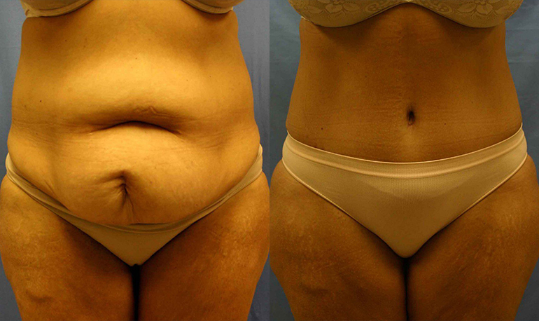 Tummy Tuck Clearwater Patient 2