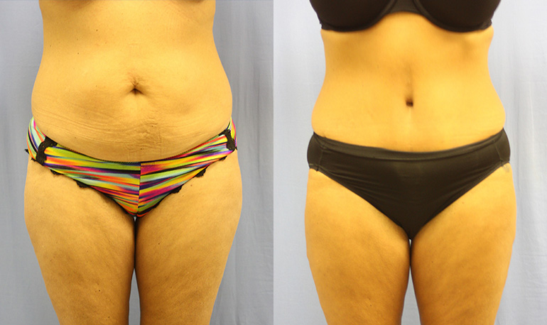 Tummy Tuck Clearwater Patient 3