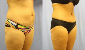 Tummy Tuck Clearwater Patient 3.1