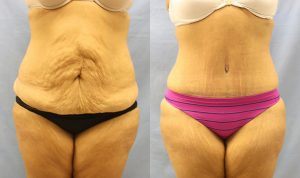 Patient 7a Tummy Tuck Before and After