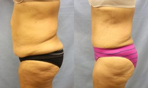 Tummy Tuck Clearwater Patient 4.1