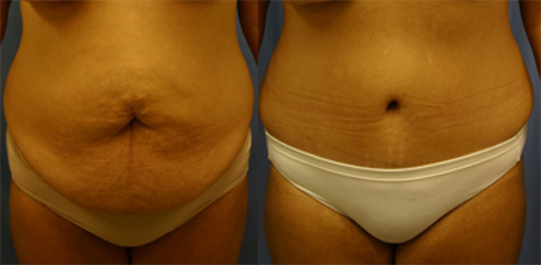 Patient 1a Tummy Tuck Before and After