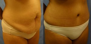 Tummy Tuck Palm Harbor Patient 1.2
