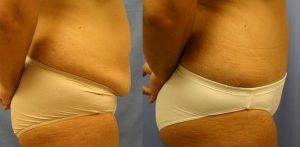 Tummy Tuck Palm Harbor Patient 1.3