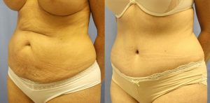 Patient 2a Tummy Tuck Before and After