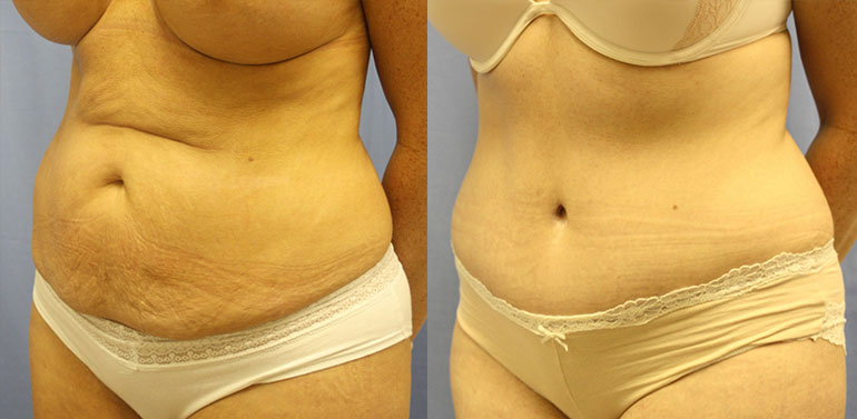 Tummy Tuck Palm Harbor Patient 2