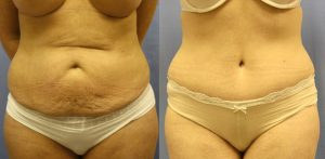 Patient 2b Tummy Tuck Before and After