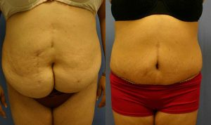 Patient 3b Tummy Tuck Before and After