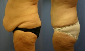 Patient 18b Tummy Tuck Before and After