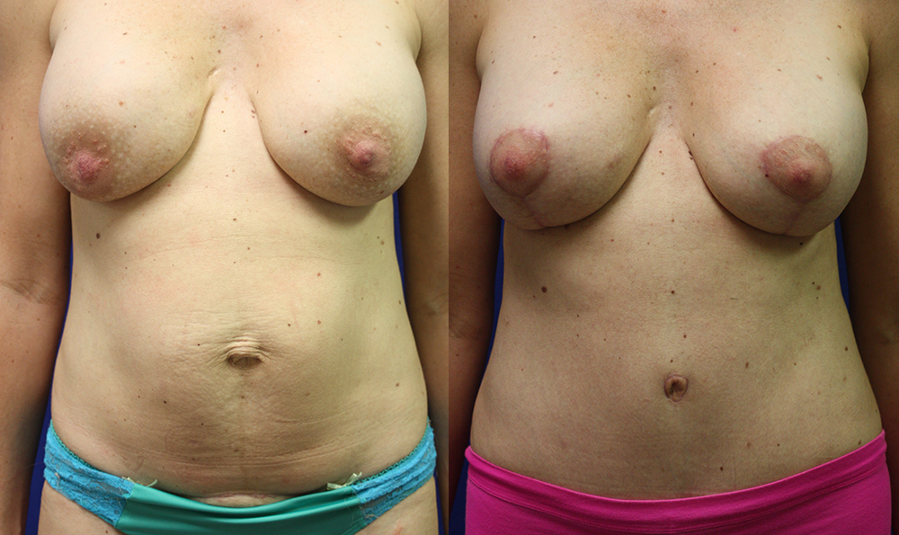 Patient 19a Tummy Tuck Before and After