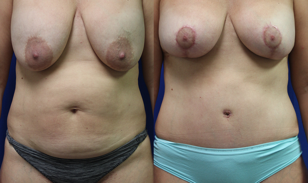 Patient 20a Tummy Tuck Before and After