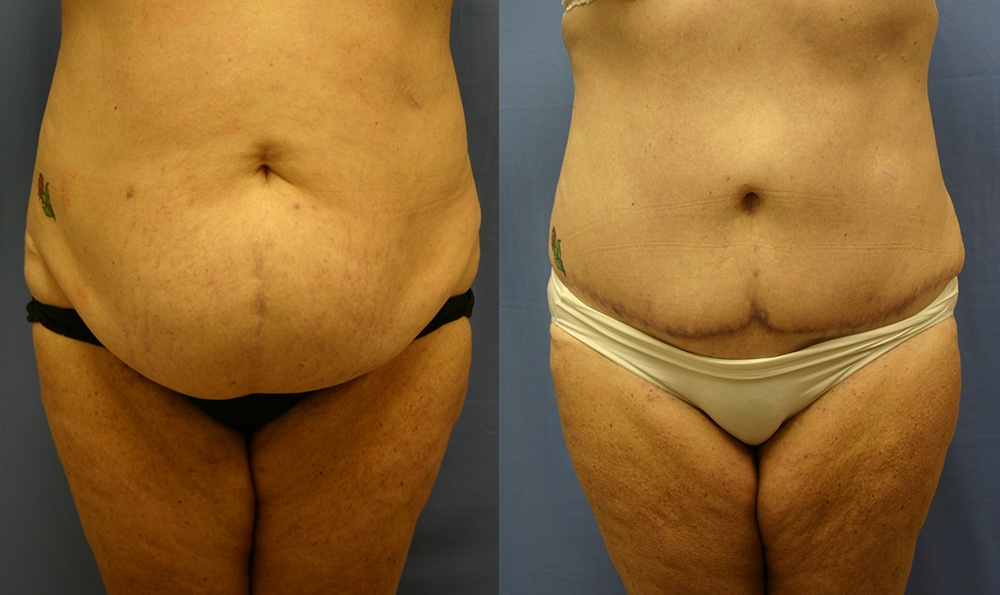 Patient 18a Tummy Tuck Before and After