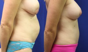 Patient 19b Tummy Tuck Before and After