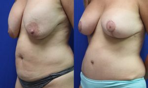 Patient 20b Tummy Tuck Before and After