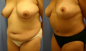 Patient 12b Tummy Tuck Before and After