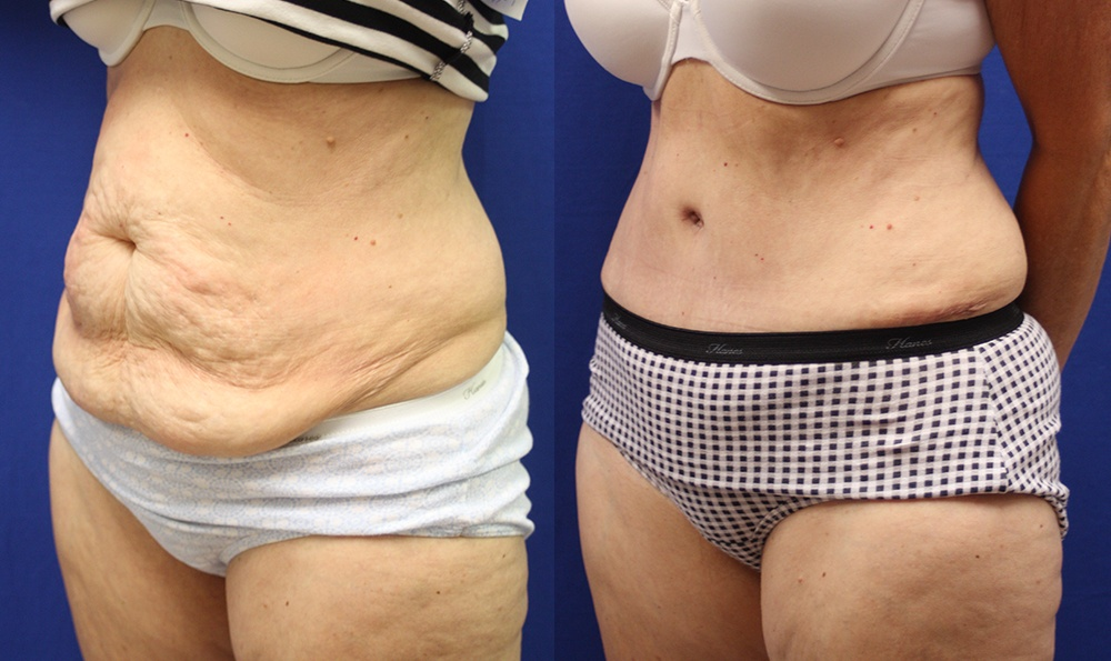 Patient 17a Tummy Tuck Before and After