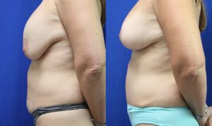 Patient 20c Tummy Tuck Before and After
