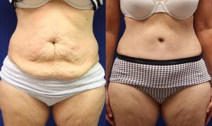 Patient 17b Tummy Tuck Before and After