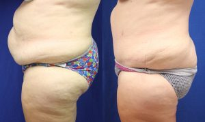 Patient 16b Tummy Tuck Before and After