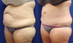 Patient 16c Tummy Tuck Before and After