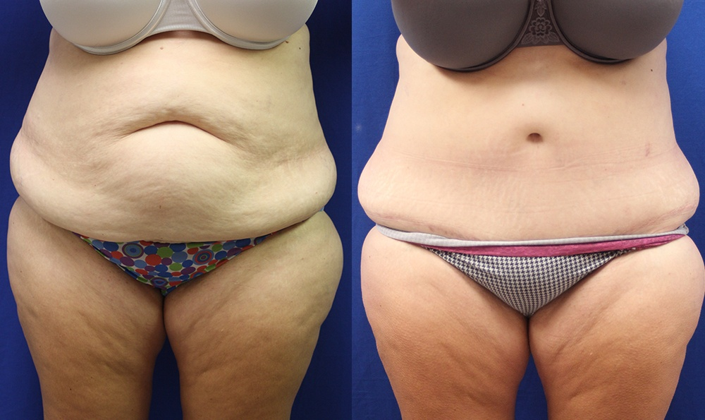 Patient 16a Tummy Tuck Before and After
