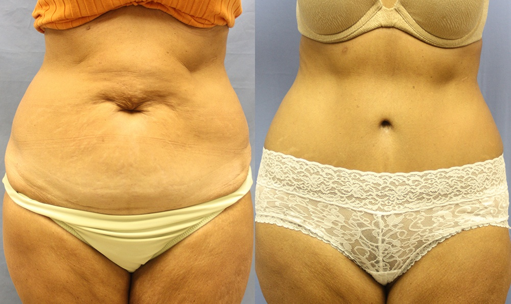 Patient 15a Tummy Tuck Before and After
