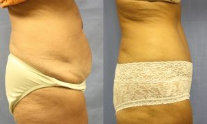 Patient 15b Tummy Tuck Before and After