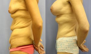 Patient 10c Tummy Tuck Before and After