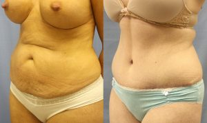 Patient 14b Tummy Tuck Before and After