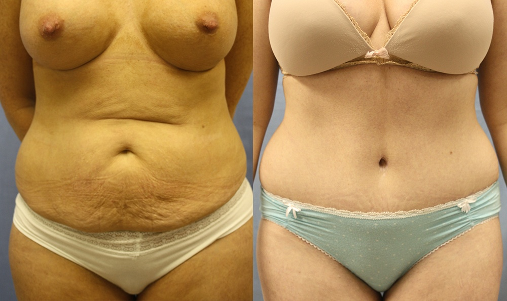 Patient 14a Tummy Tuck Before and After