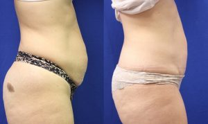 Patient 13b Tummy Tuck Before and After