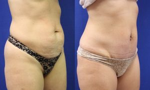 Patient 13c Tummy Tuck Before and After
