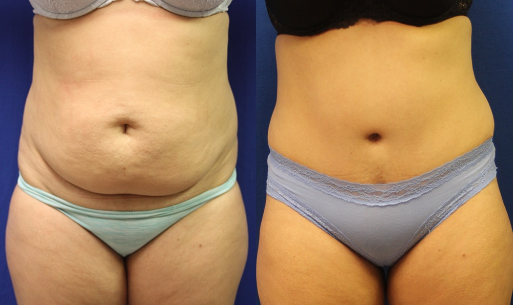 Patient 9a Tummy Tuck Before and After