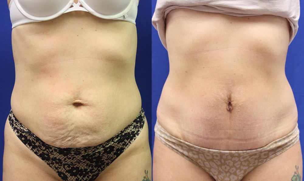 Patient 13a Tummy Tuck Before and After
