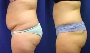 Patient 9b Tummy Tuck Before and After