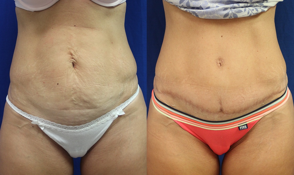 Patient 8a Tummy Tuck Before and After