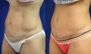 Patient 8b Tummy Tuck Before and After