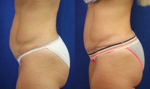 Patient 8c Tummy Tuck Before and After