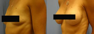 Patient A Breast Augmentation Before and After