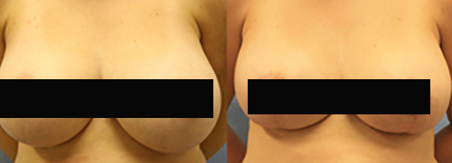 Patient A Breast Reduction Before and After