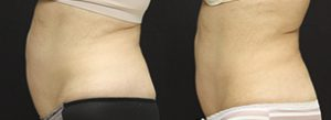 Patient A CoolSculpting® Before and After