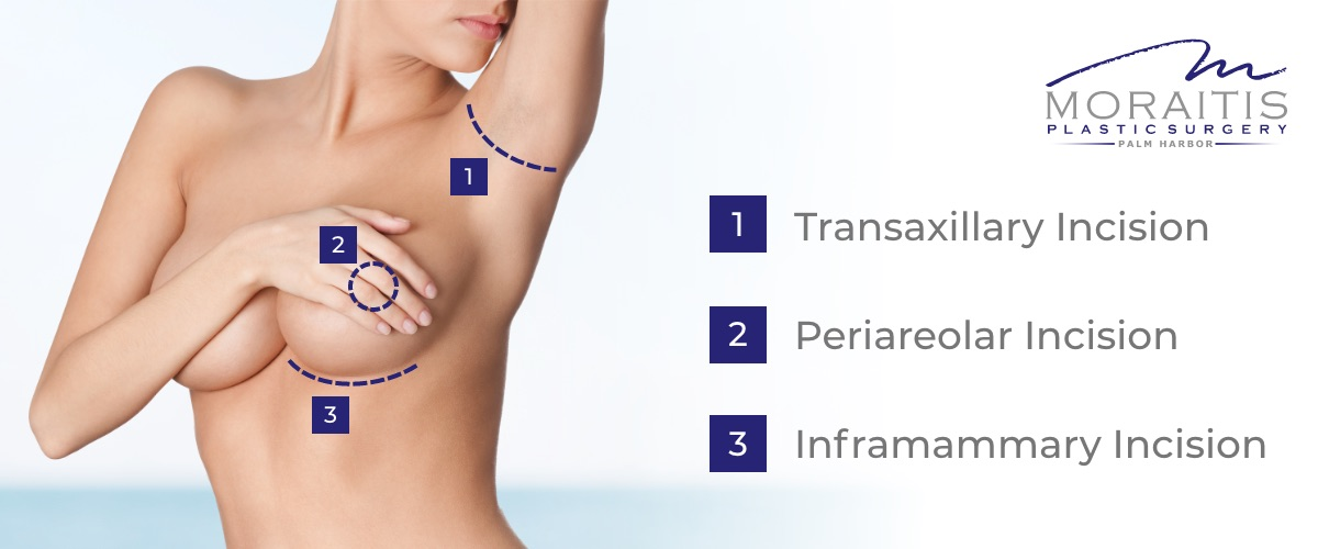 Breast augmentation incision types graphic