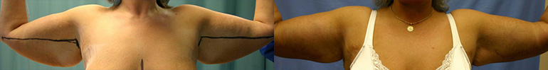 Patient 2 Arm Lift Before and After