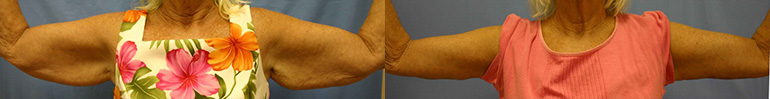 Patient 1 Arm Lift Before and After